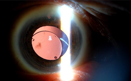 Dislocated Intraocular Implants