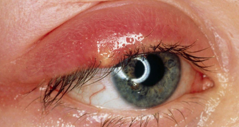 Eyelid Diagnosis & Treatments